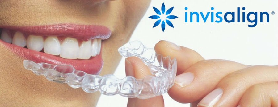 Grand Dental Center is an Invisalign provider.
