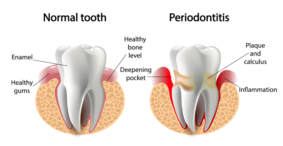 Gum disease, also called periodontal disease, is a degenerative condition primarily caused by bacteria found in plaque.